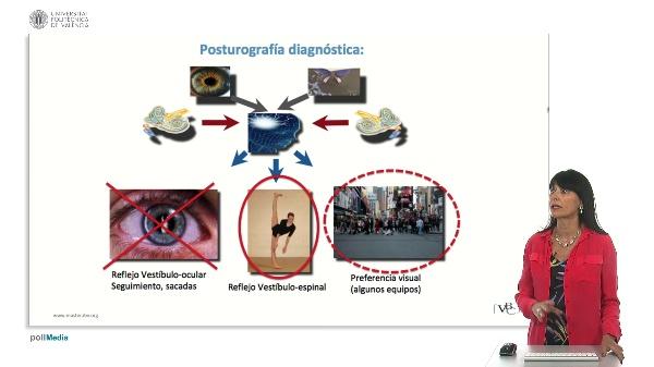 Aplicaciones de la Posturografía en la patología de la Vía Vestibular. II
