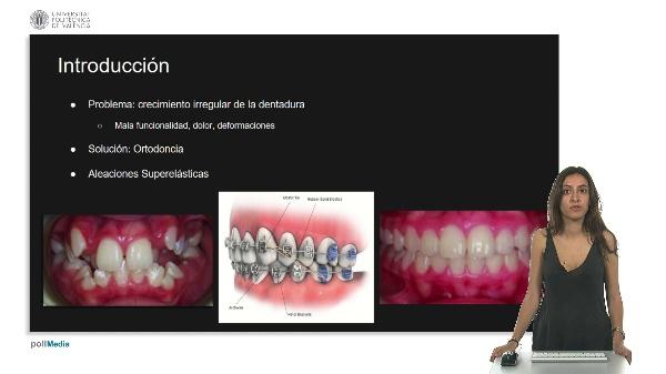 Aleaciones super elásticas para ortodoncia