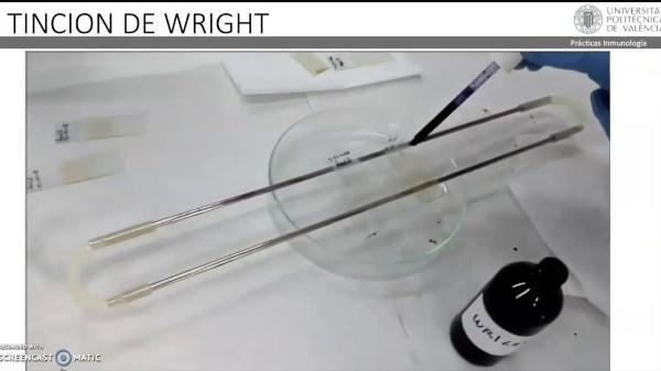 Tinción de Wright - sin locución