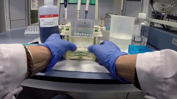 Desmontaje de electroforesis en gel de poliacrilamida y tinción del gel