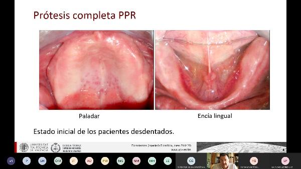 Clase de biomateriales: Aplicaciones dentales I